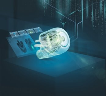 Siemens makes additive manufacturing capabilities, 3D printers available to medical community